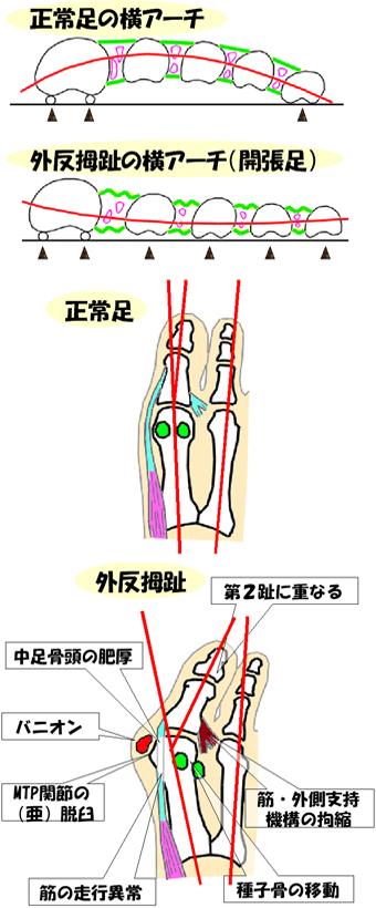 ヒトの足の仕組み -アーチ構造-