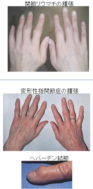 関節リウマチと間違われやすい疾患